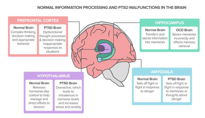 PTSD Brain